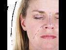Viscot (STERILE) BLEPHMARKER Twin Tip Skin Marker with Ultrafine Tip on both ends & Ruler