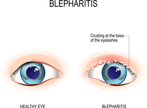 Is it Dry Eyes, Blepharitis or MGD – Well! Here is a solution