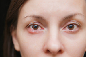 Chalazion or Styes – Get rid of the Red Eye Bumps
