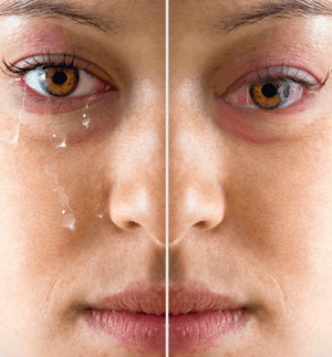 Is Dry Eyes or Tear Dysfunction Syndrome similar or different?