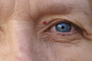 Hemangioma: Causes, Symptoms, Diagnosis And Treatment