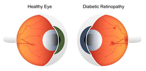 How Diabetes Affects the Eyes?