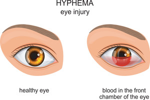 Hyphema: Symptoms, Causes, Diagnosis And Treatment
