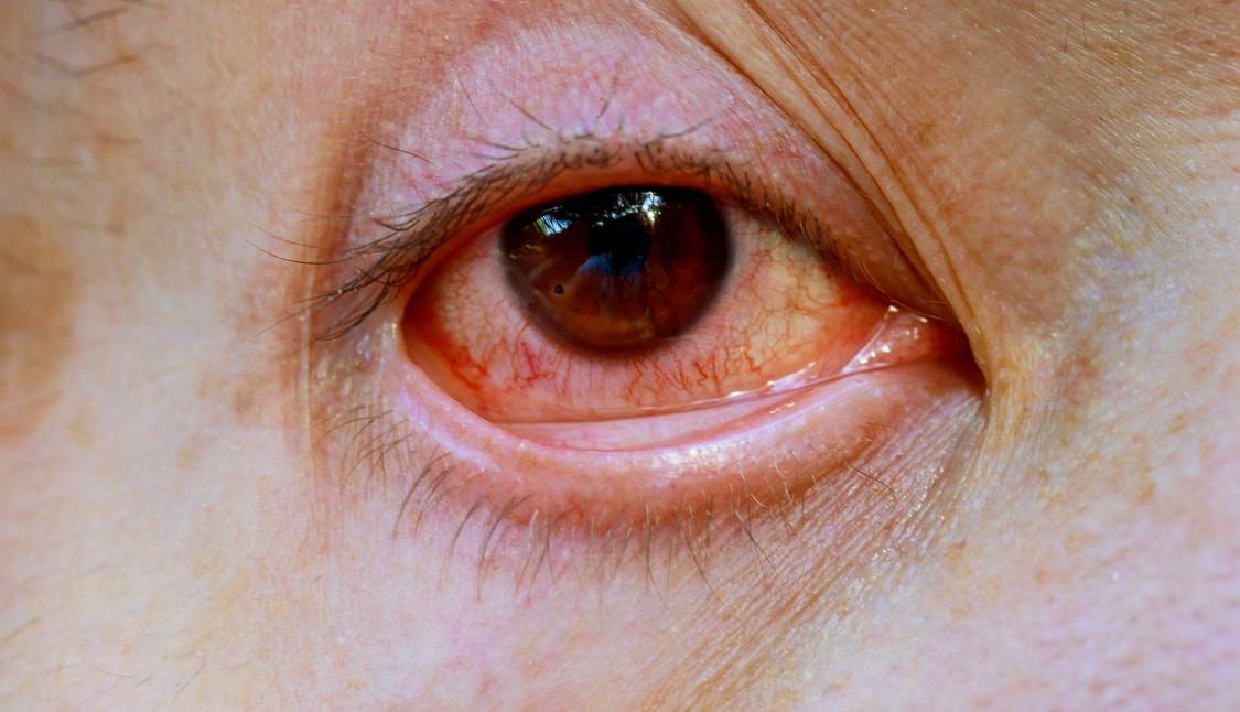 ​Giant Papillary Conjunctivitis: Causes, Symptoms And Treatment