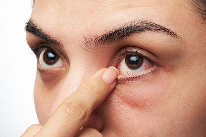 Dry Eyes Symptoms And Its Relation With Prescribed Blood Pressure Medication