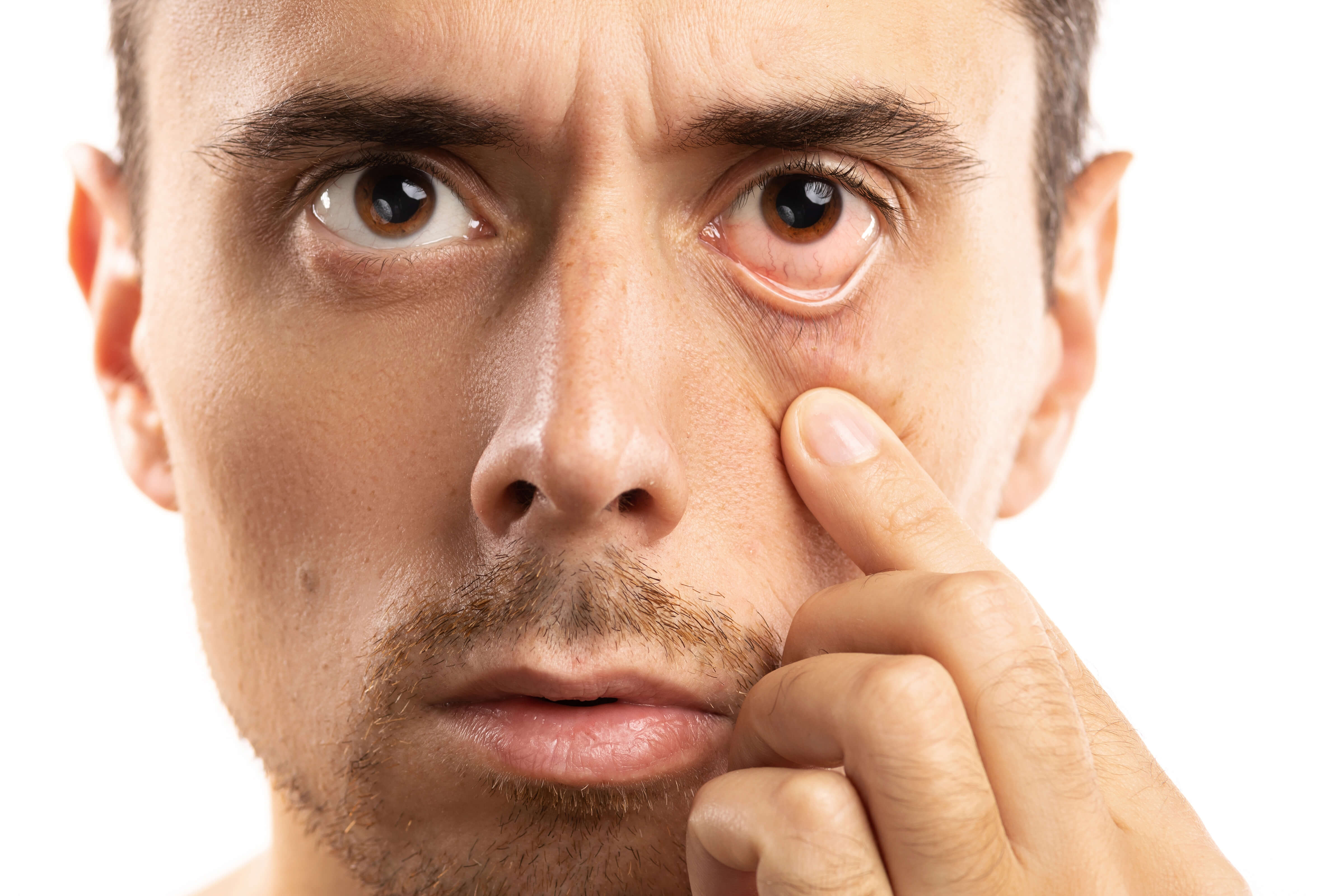 Do It Yourself Remedies To Manage Dry Eyes