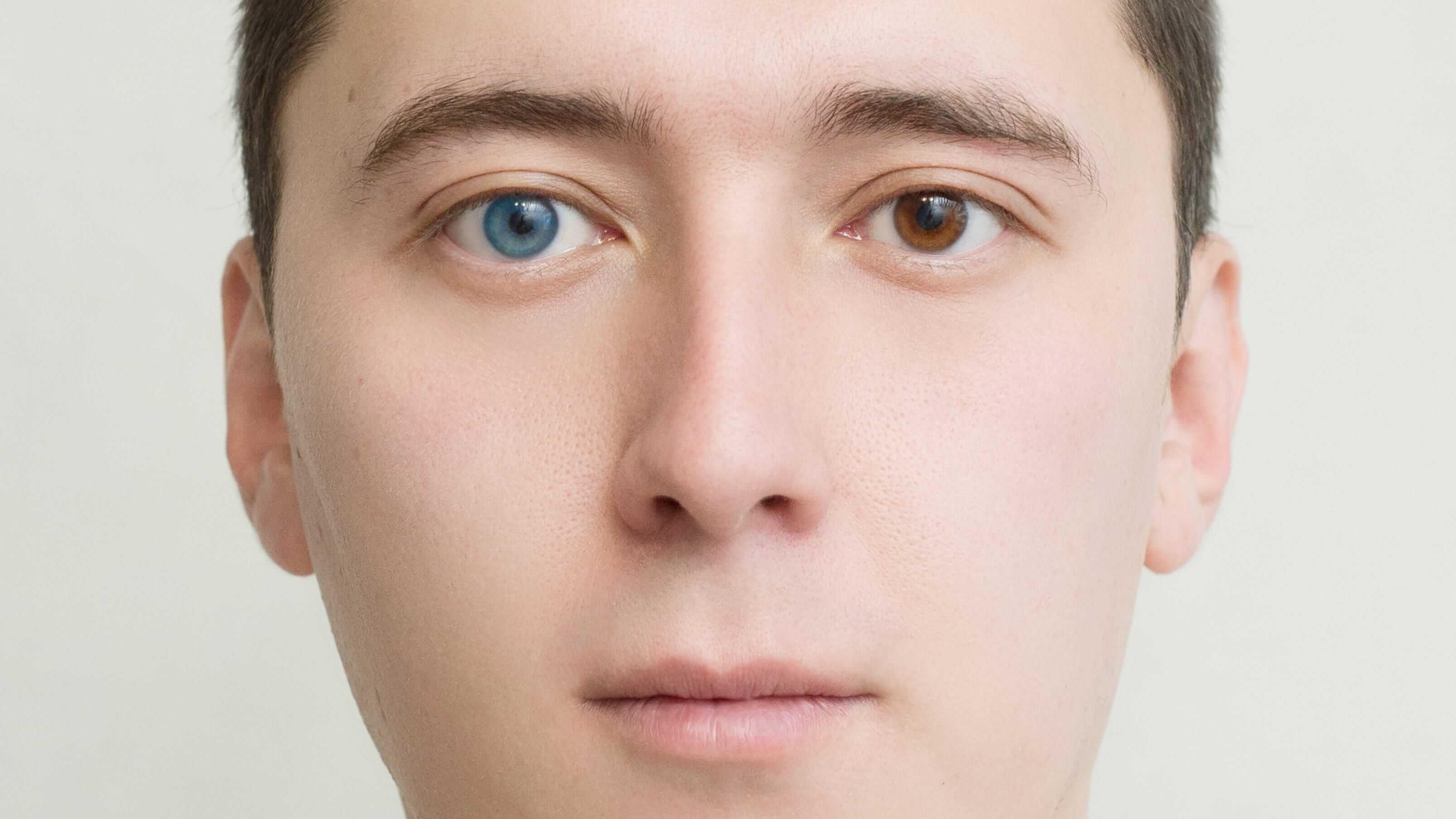Heterochromia: Causes, Diagnosis and Treatment