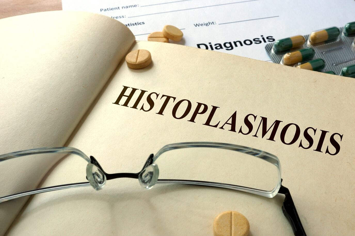 Histoplasmosis: Symptoms, Diagnosis And Treatment