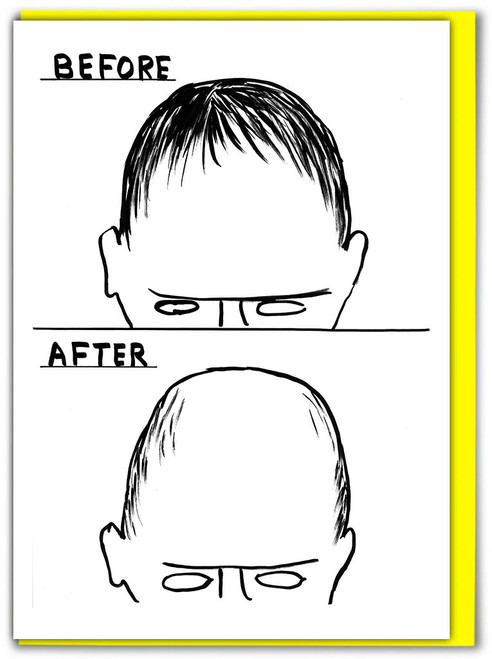 David Shrigley Before After Greetings Card