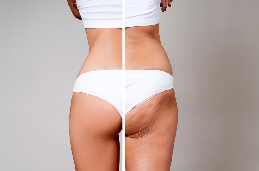 Cellulite & Stretch Mark Spray