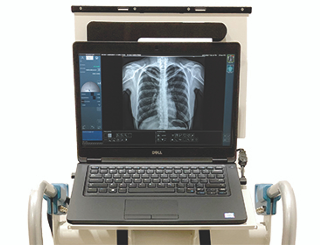 1st Source Vision M Portable X-Ray System | Jaken Medical