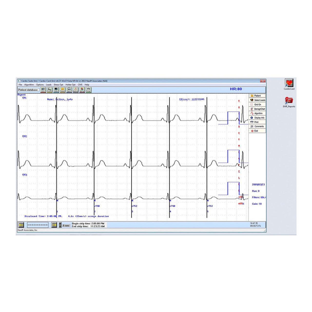 Nasiff PC-Based Cardio Holter System - Jaken Medical Inc