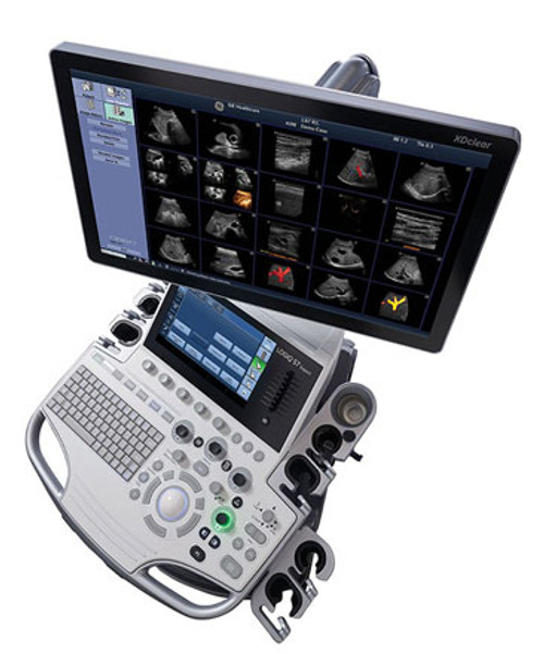 GE LOGIQ S7 with XDclear Ultrasound System