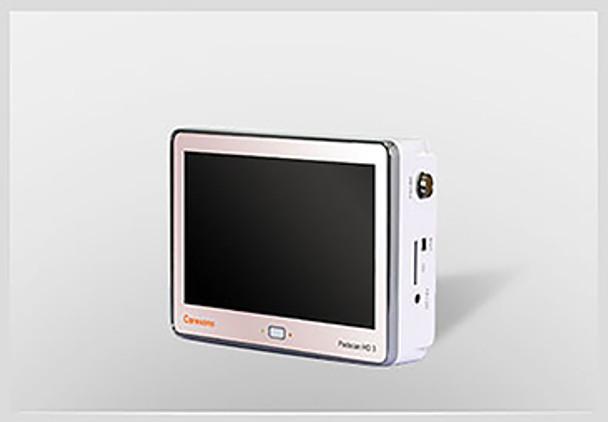 Caresono Bladder Scanner HD3