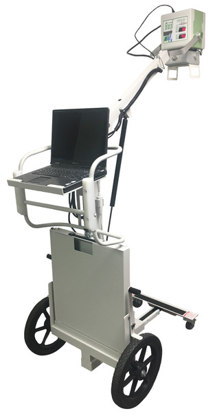 Rayence DPX - Digital Portable X-Ray System