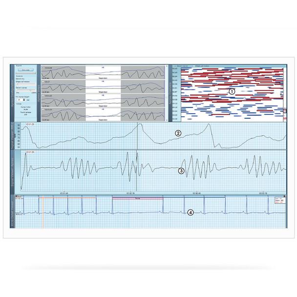 Schiller MEDILOG® DARWIN2 Holter System