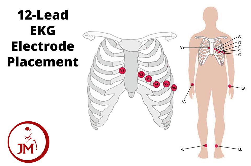 12-lead Resting Ekg Electrode Placement