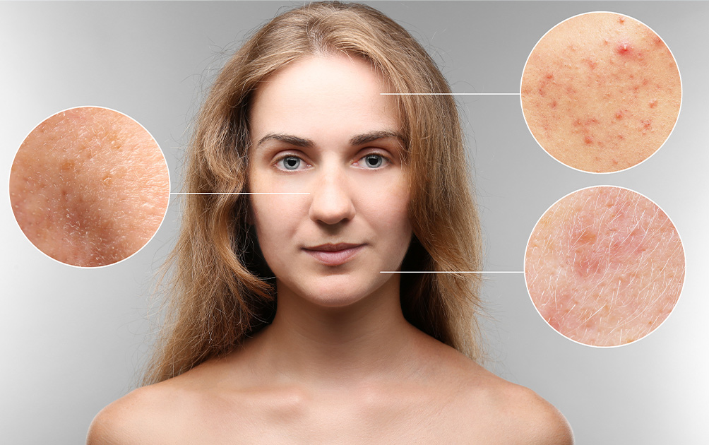 4 Super Home Remedies to Get Rid of Skin Pigmentation