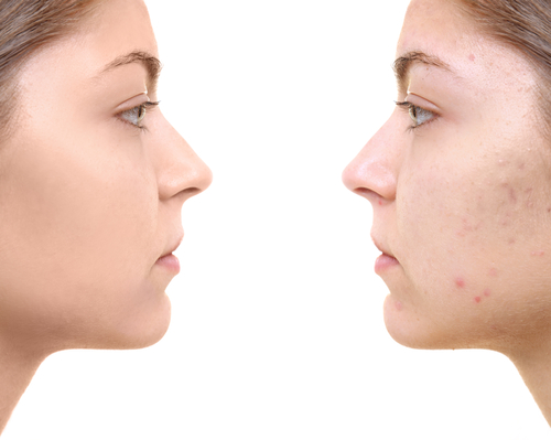 7 Natural Remedies To Help Eliminate Acne Scars