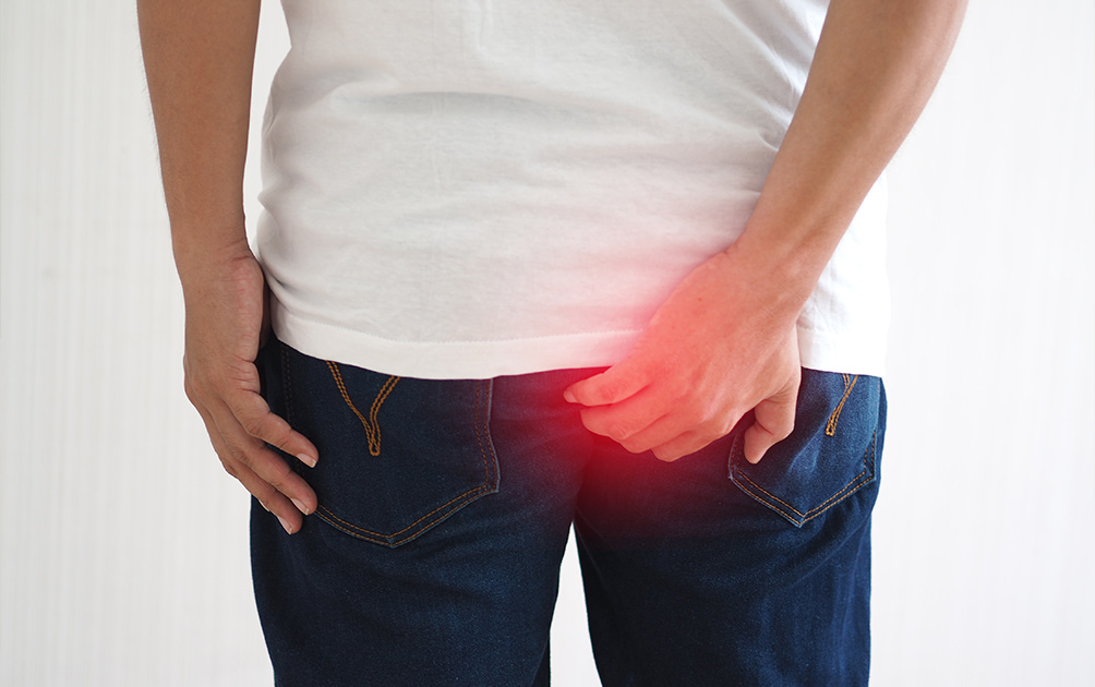 Hemorrhoids: Types and Symptoms!