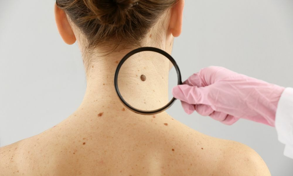 Let's Know; What's the Secret Meaning Of Your Birthmarks