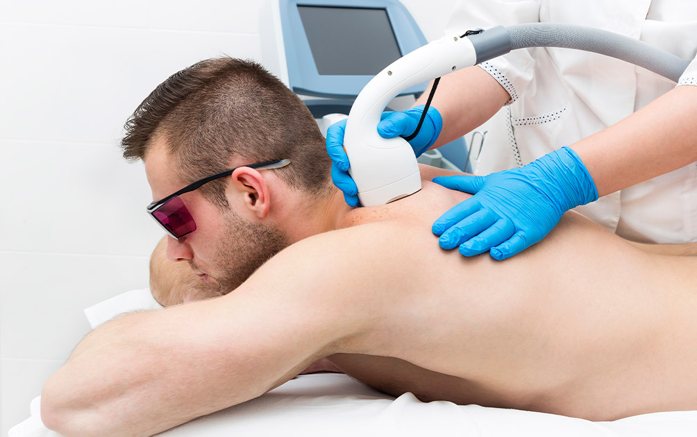 Body Hair Removal for Men- Yes it's Possible!