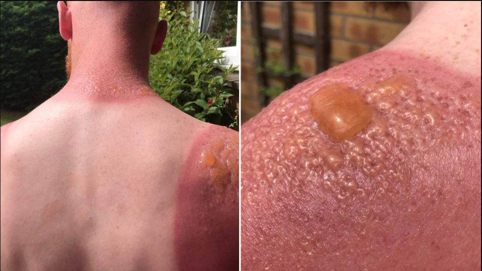 3 Easy Home Remedies To Cure Sunburn