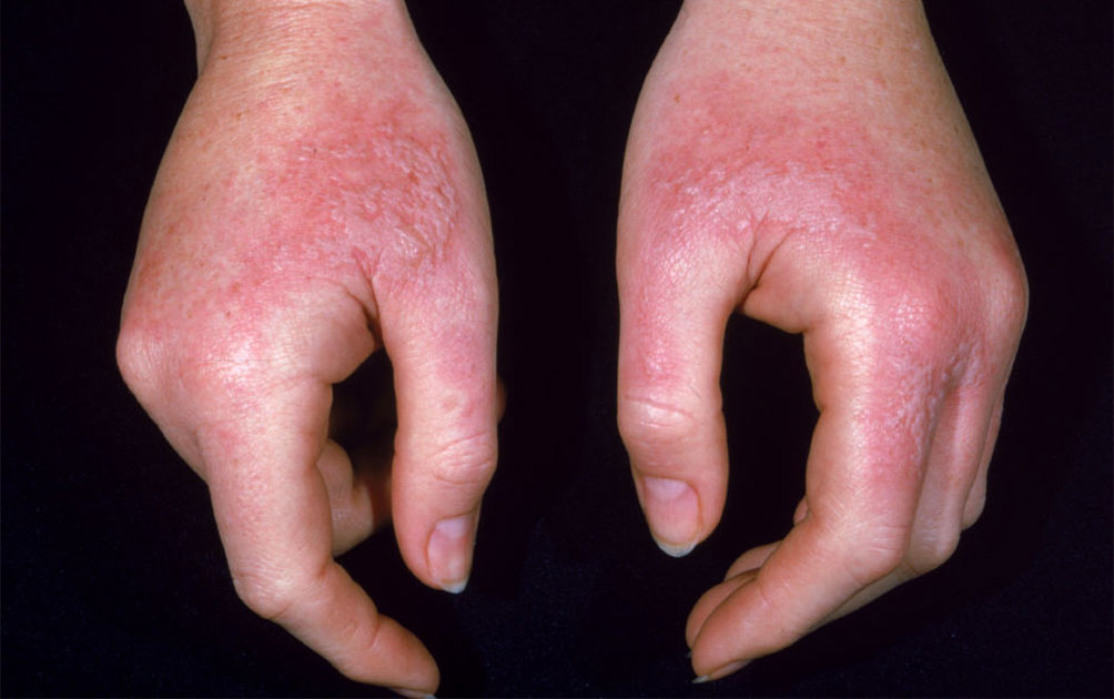 Dermatitis; Its Symptoms With An Effective Treatment