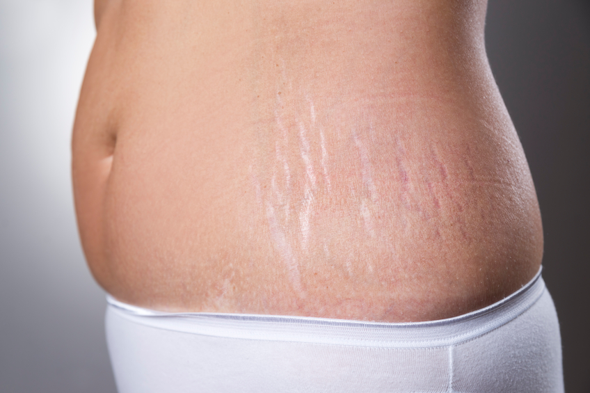 Time To Say Good Bye To Stretch Marks