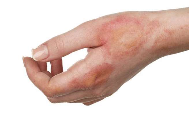 Having A Minor Burn? Here Are 5 Ways To Treat A Burn