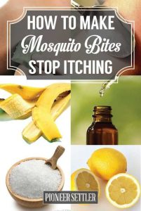 Effective Home Remedies for Mosquito Bites