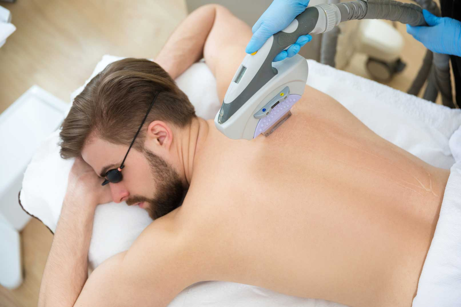 Make A Smooth Move Towards Laser Hair Removal