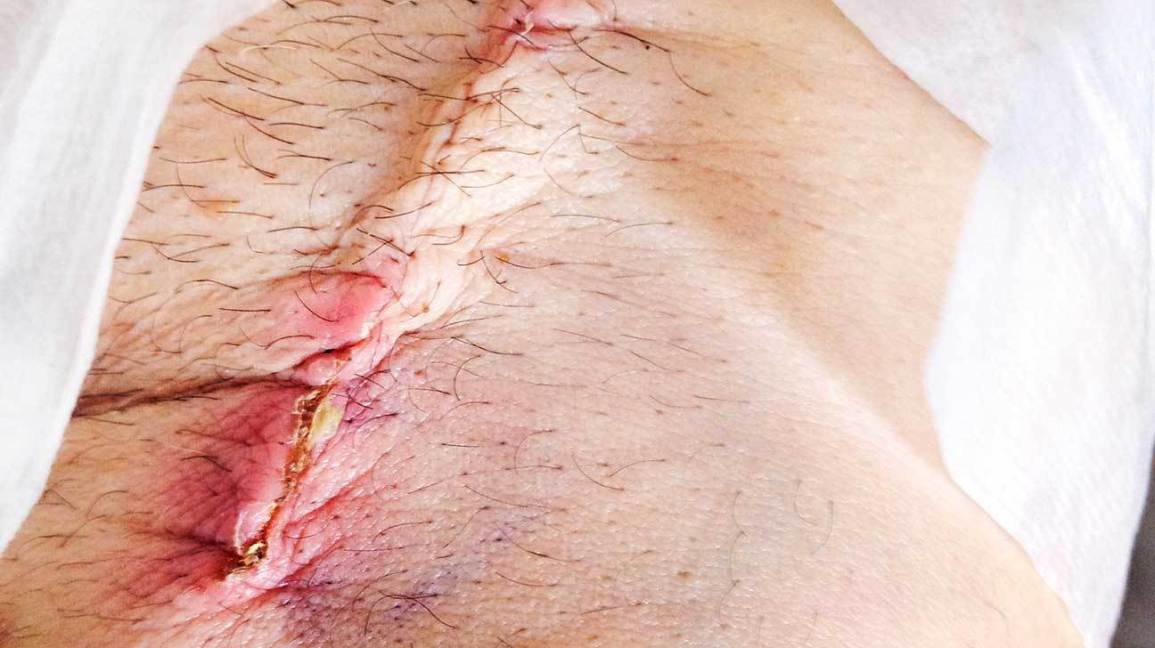 What are Stitches? Why They are Important?
