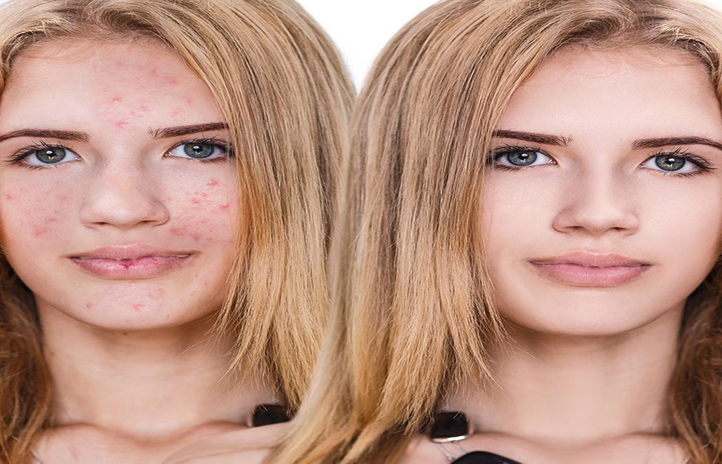 MYRIAD USES OF MICRO-NEEDLING FOR YOUNGER LOOKING SKIN