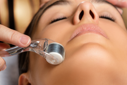 Microdermabrasion: The Procedure And Benefits