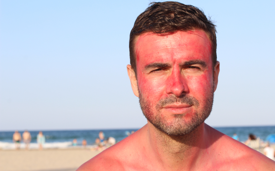 Why Does Sunburn Itch? Here is the Treatment