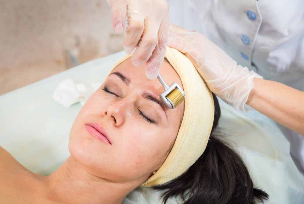 Why Derma rolling is More Tempting Skin Treatment?