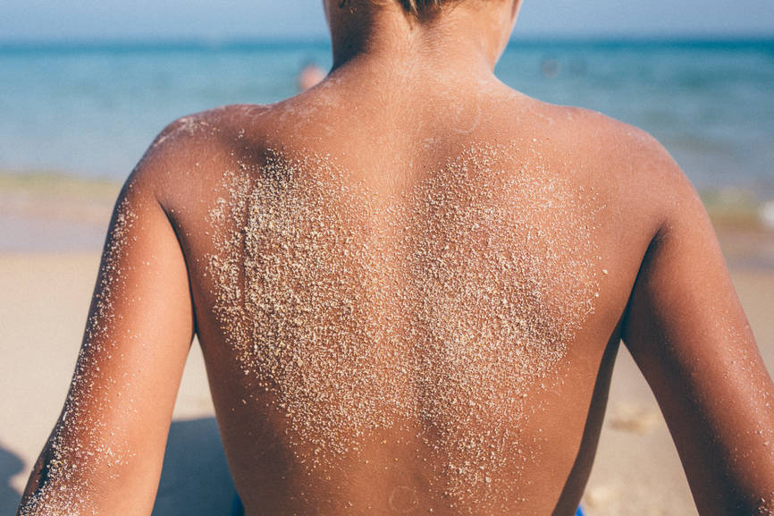 These Remedies Help You Soothe SUNBURN At Home!