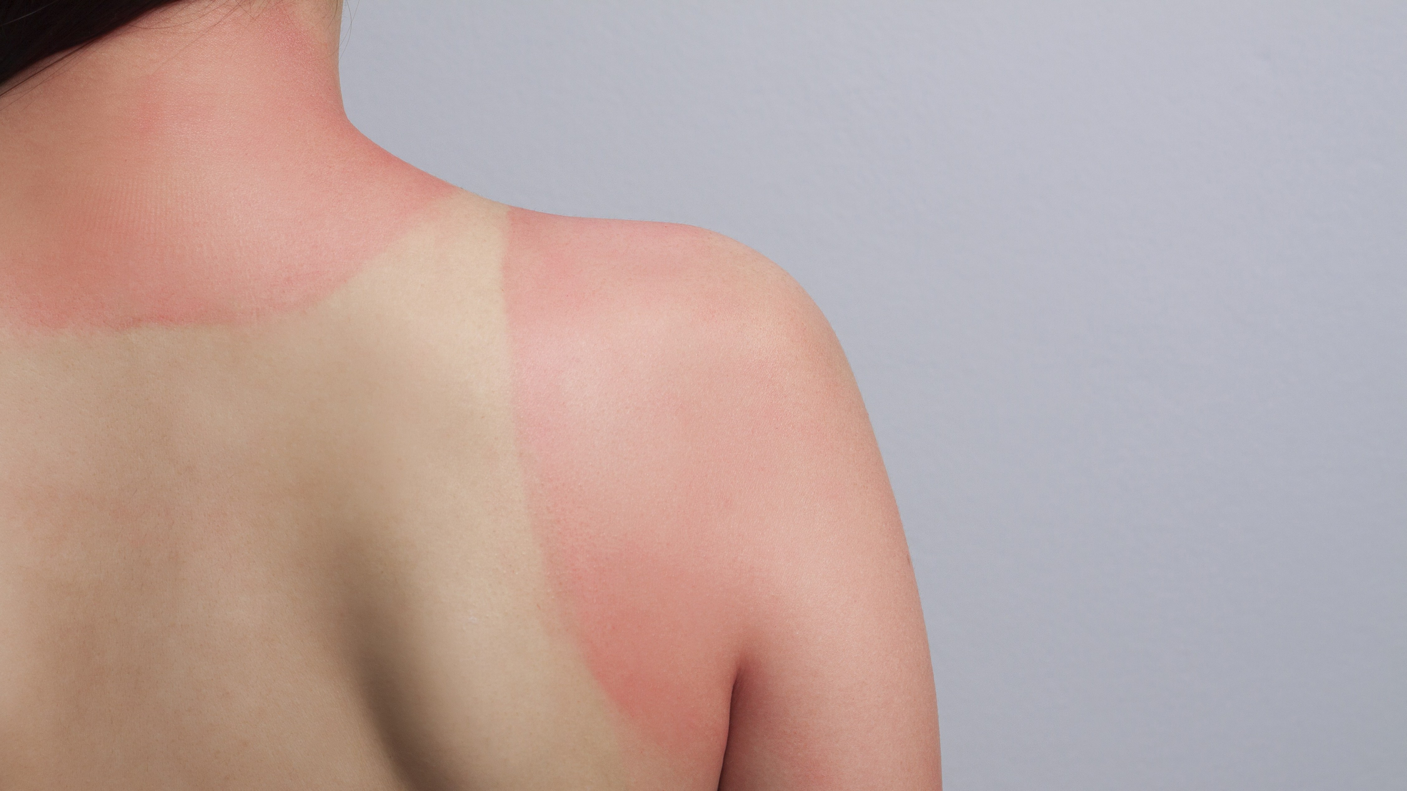 Easy-To-Pick Solutions For Painful Sunburns