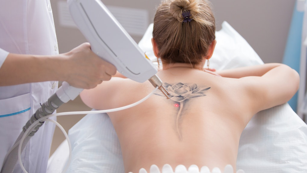Are Tattoo Removals Painful? Get To Know Your Solution