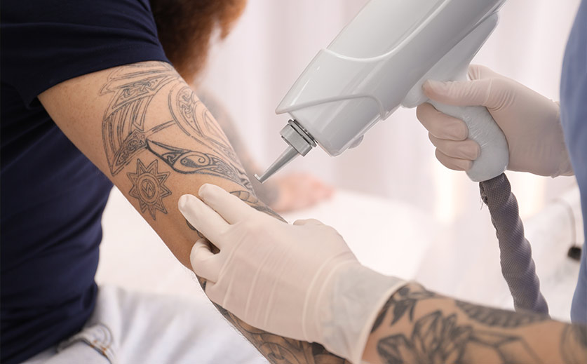 Do These Things to Remove Your Tattoo before Laser