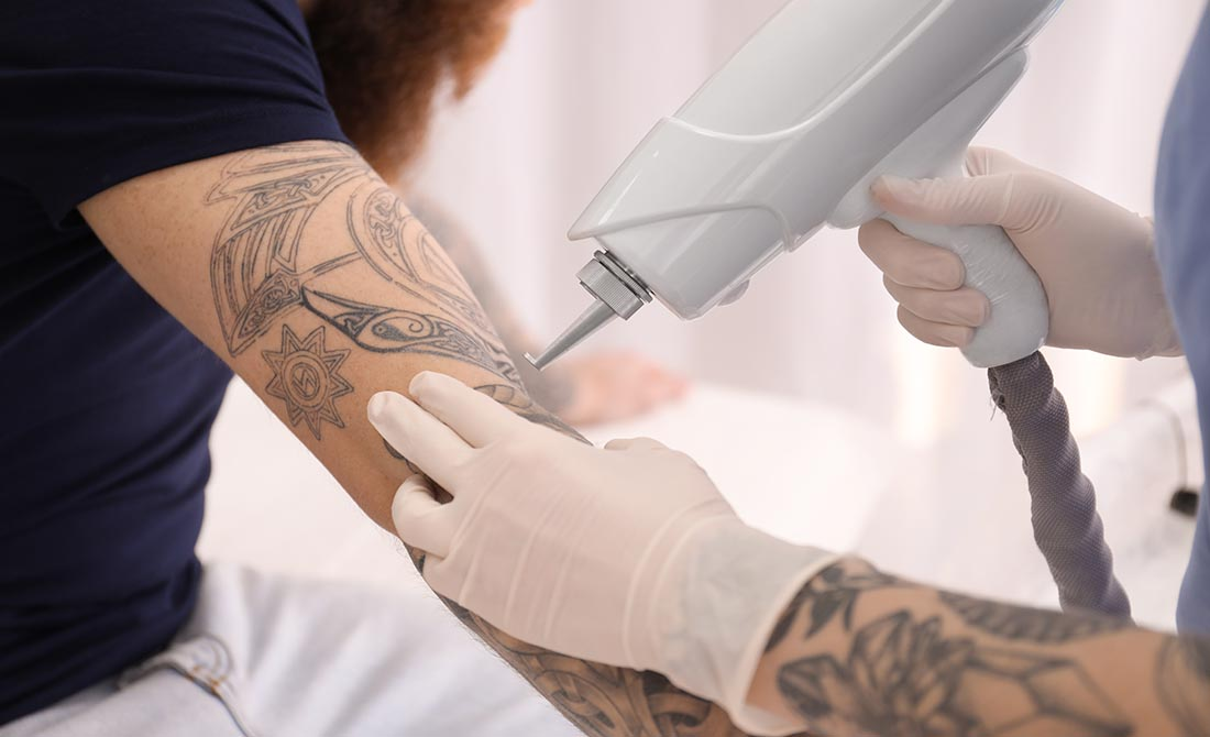 Common Anesthetic Solutions for a Laser Tattoo Removal
