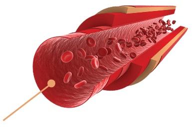 provex-heart-endothelium.jpg