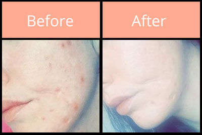 Morgellons before and after on face