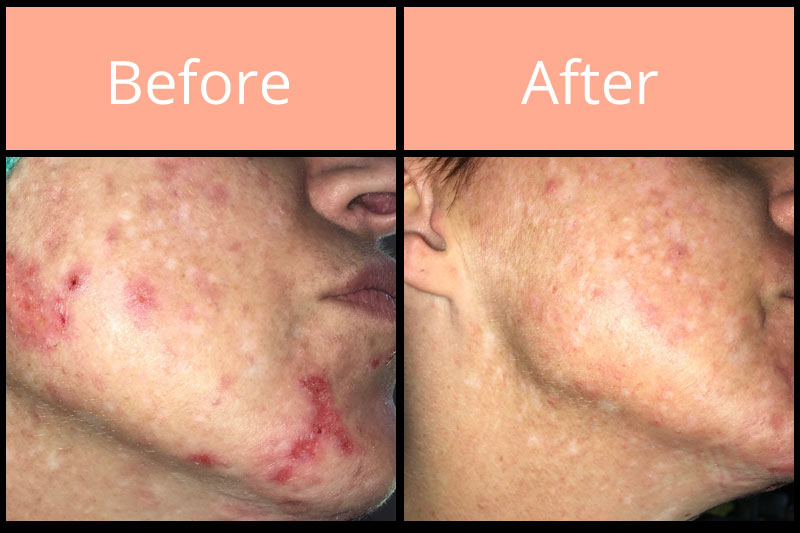 Morgellons before and after on cheek