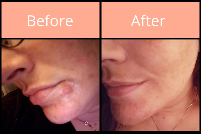 Morgellons before and after on chin