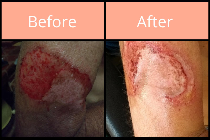 Morgellons before and after on hand