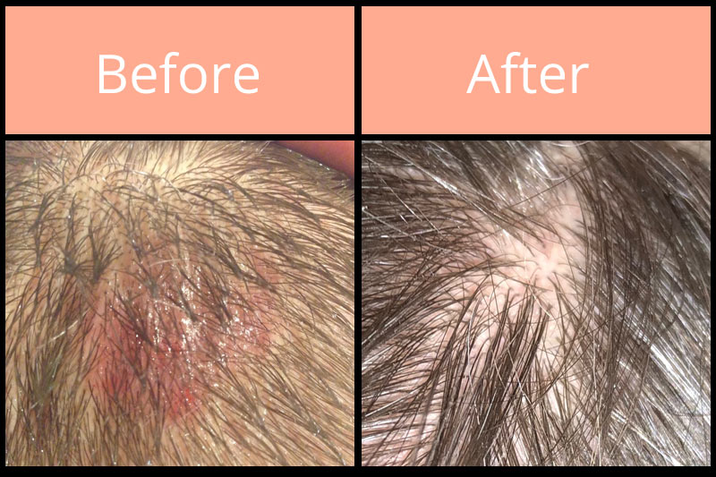 Morgellons before and after on head