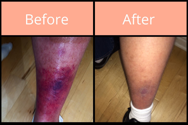 Morgellons before and after on leg
