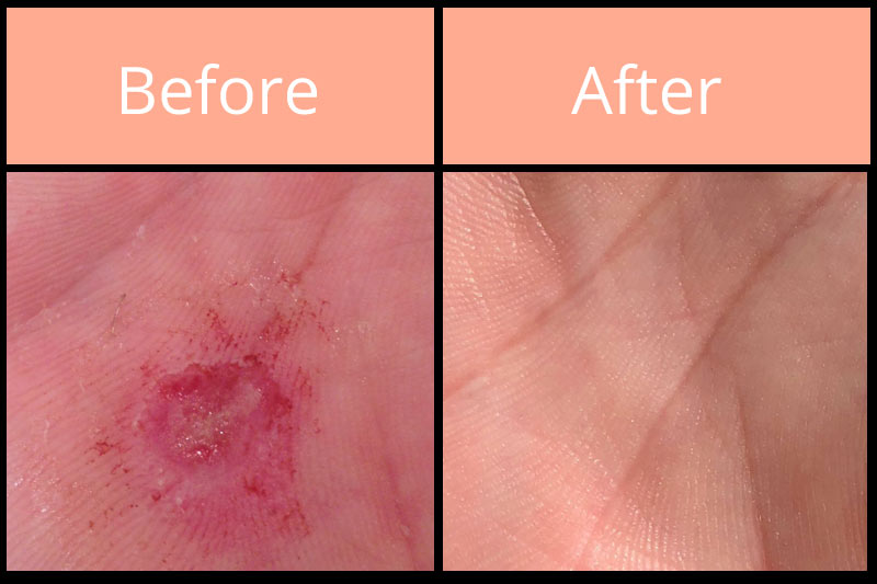 Morgellons before and after on palm